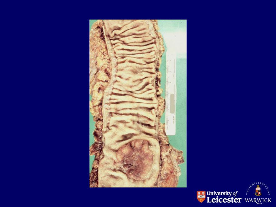 LYMPHOID Malignant lymphoma (B and T) Hodgkins Disease BONE MARROW Acute and chronic leukaemia