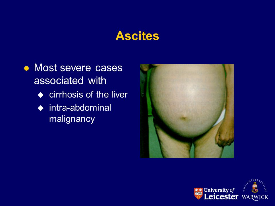 Ascites Most severe cases associated with  cirrhosis of the liver  intra-abdominal malignancy