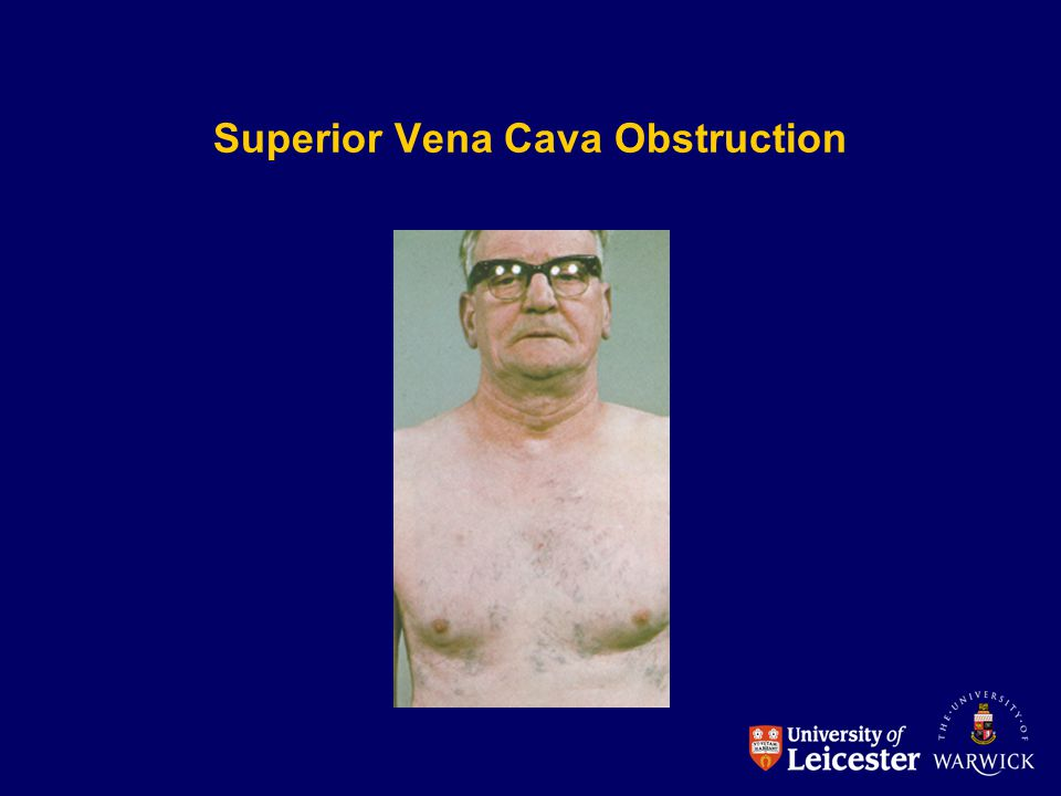 Superior Vena Cava Obstruction