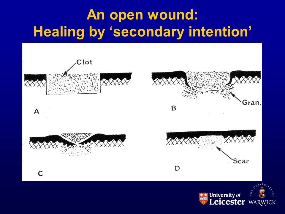 An open wound: Healing by 'secondary intention'