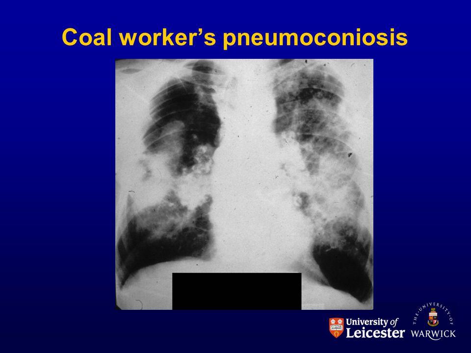 Coal worker's pneumoconiosis