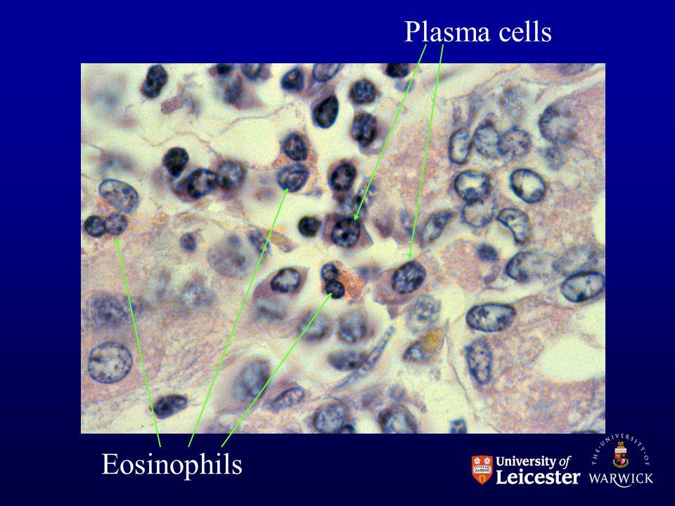 Eosinophils Plasma cells
