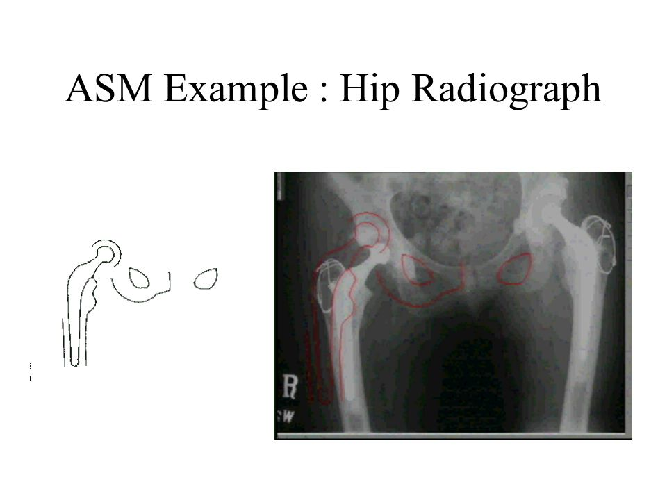 ASM Example : Hip Radiograph