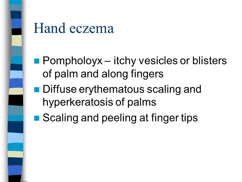 Hand eczema Pompholoyx – itchy vesicles or blisters of palm and along fingers Diffuse erythematous scaling and hyperkeratosis of palms Scaling and pee