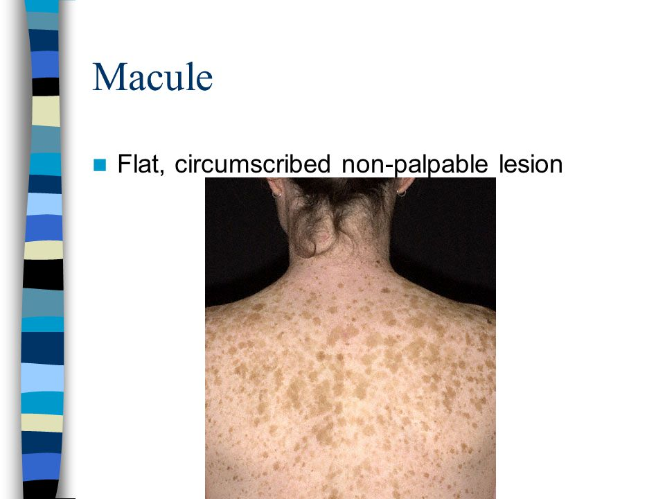 Macule Flat, circumscribed non-palpable lesion