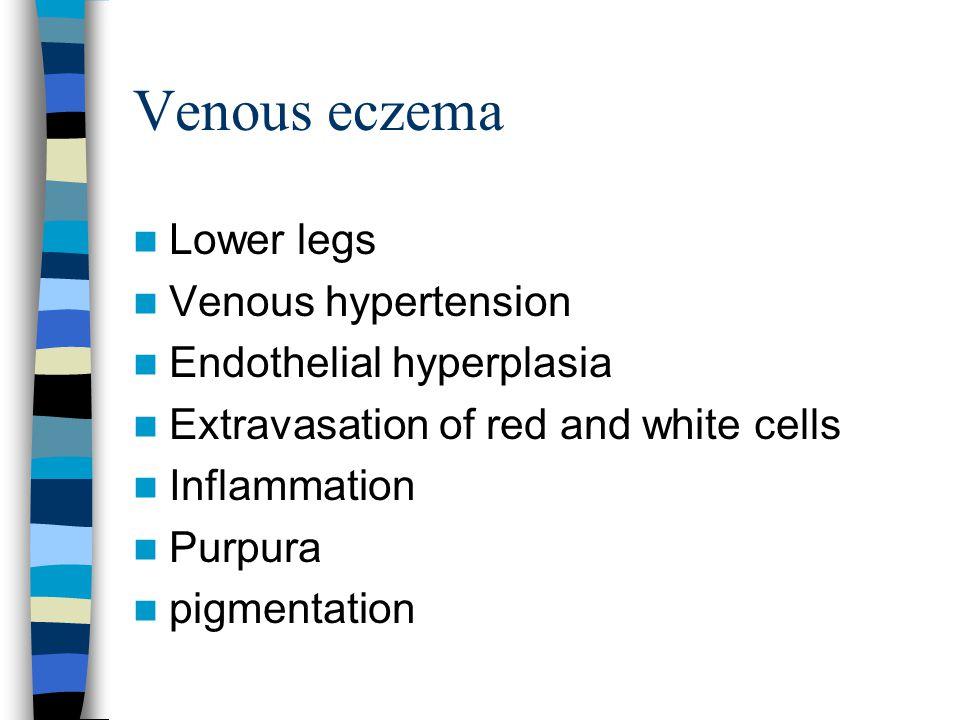 Venous eczema Lower legs Venous hypertension Endothelial hyperplasia Extravasation of red and white cells Inflammation Purpura pigmentation