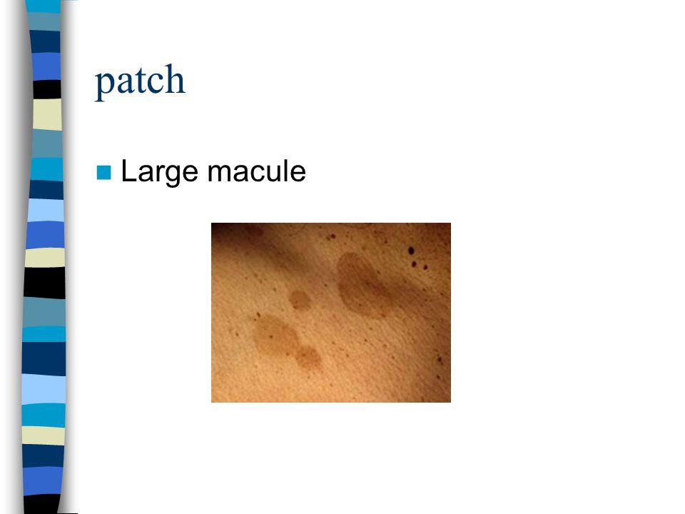 patch Large macule