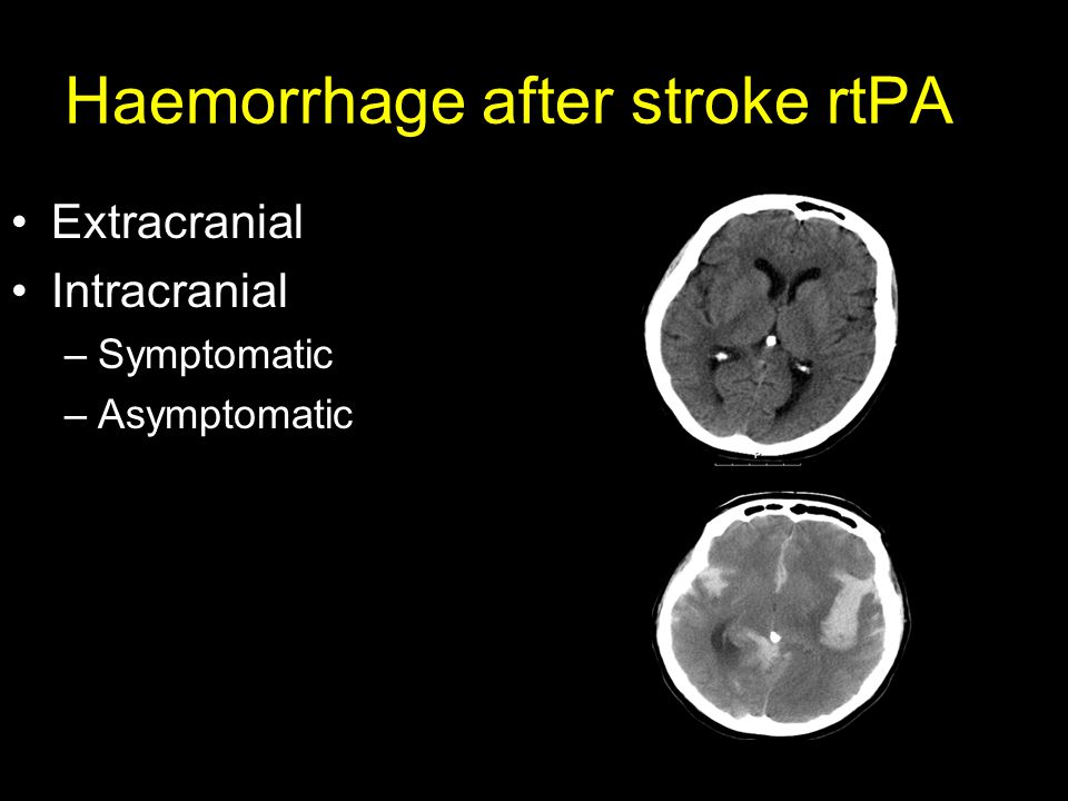 Haemorrhage after stroke rtPA Extracranial Intracranial –Symptomatic –Asymptomatic