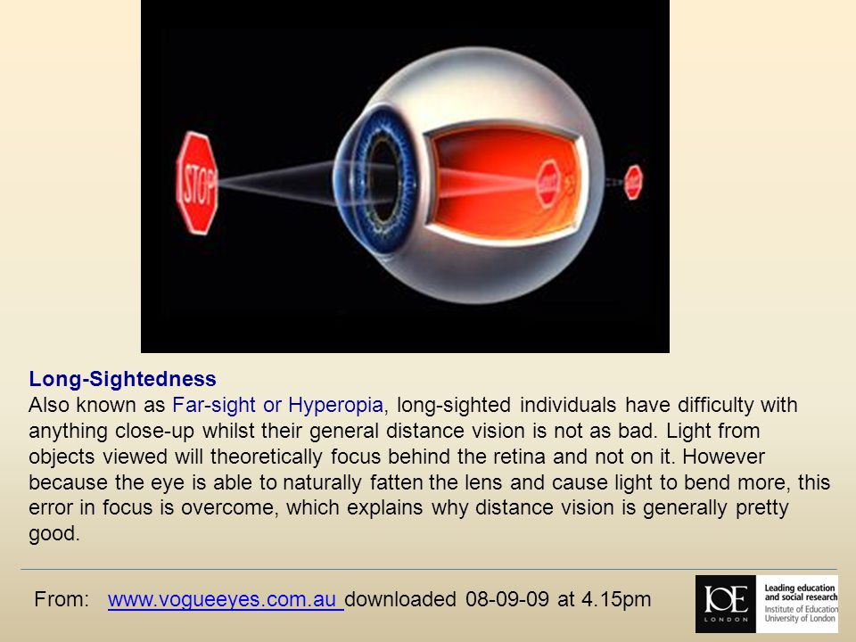 From: www.vogueeyes.com.au downloaded 08-09-09 at 4.15pmwww.vogueeyes.com.au Long-Sightedness Also known as Far-sight or Hyperopia, long-sighted individuals have difficulty with anything close-up whilst their general distance vision is not as bad.