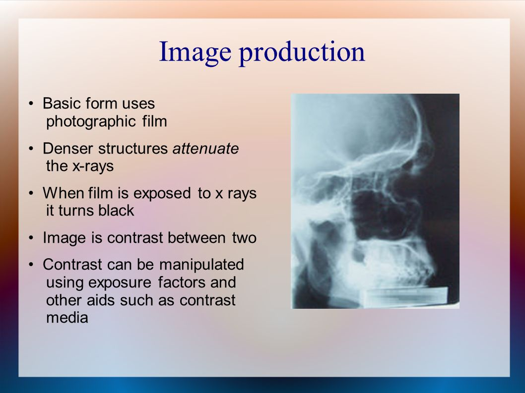 Image production Basic form uses photographic film Denser structures attenuate the x-rays When film is exposed to x rays it turns black Image is contrast between two Contrast can be manipulated using exposure factors and other aids such as contrast media