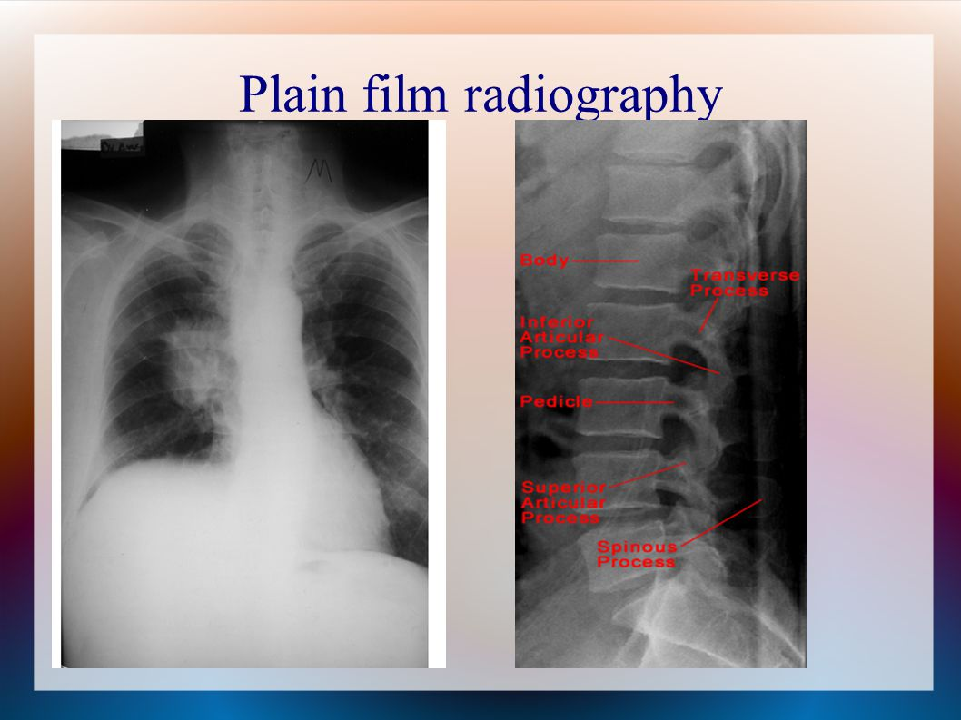 Plain film radiography