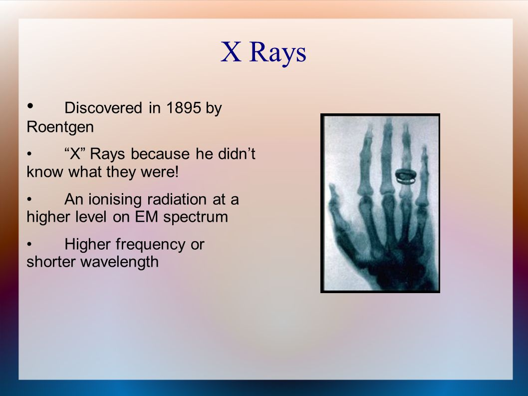X Rays Discovered in 1895 by Roentgen X Rays because he didn't know what they were.