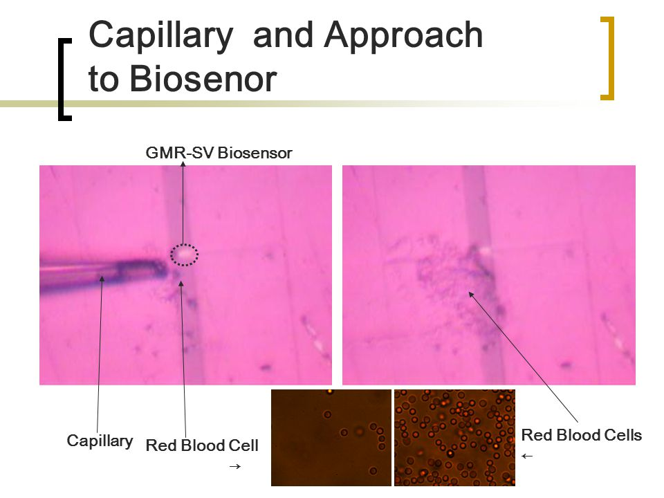 Capillary and Approach to Biosenor GMR-SV Biosensor Capillary Red Blood Cell → Red Blood Cells ←