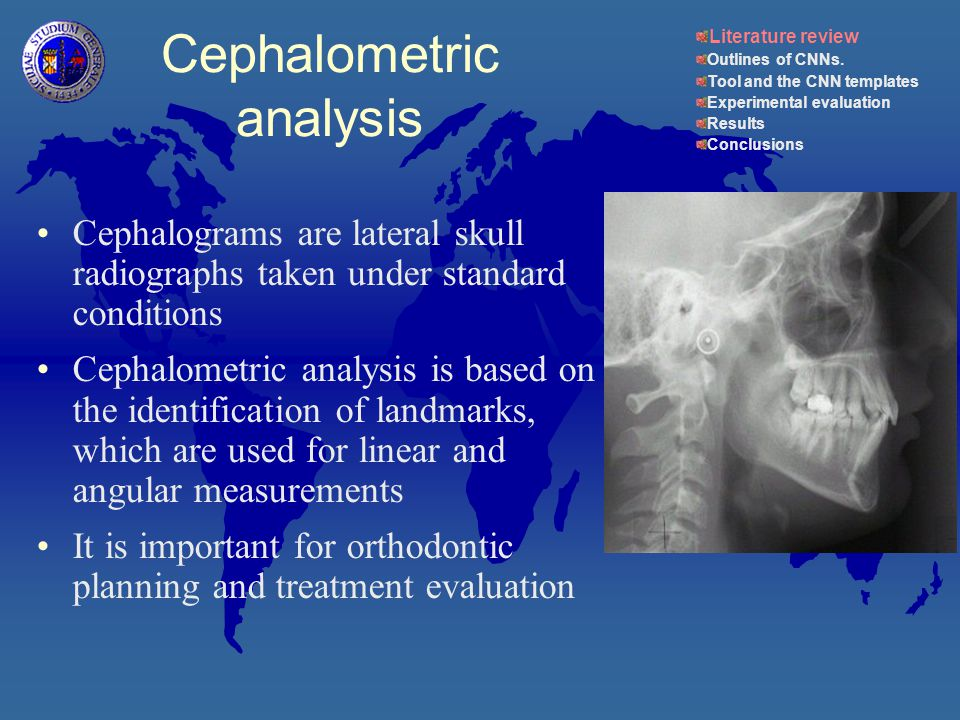 Cephalometric analysis Cephalograms are lateral skull radiographs taken under standard conditions Cephalometric analysis is based on the identification of landmarks, which are used for linear and angular measurements It is important for orthodontic planning and treatment evaluation Literature review Outlines of CNNs.