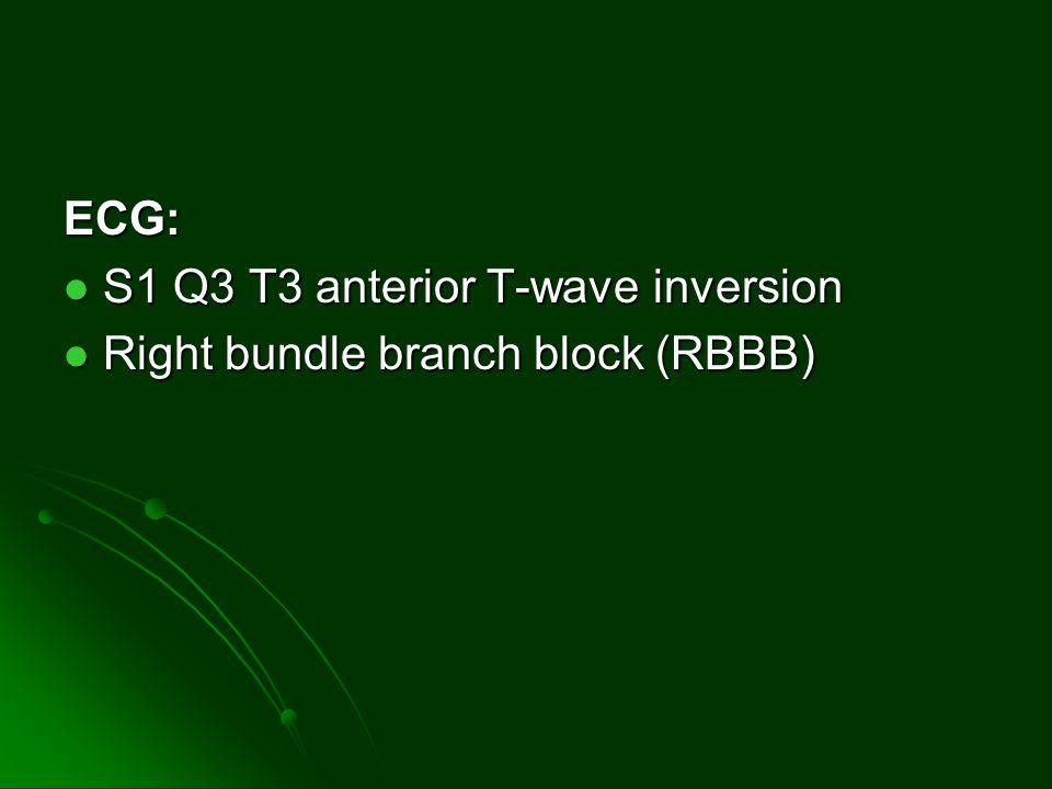 ECG: S1 Q3 T3 anterior T-wave inversion S1 Q3 T3 anterior T-wave inversion Right bundle branch block (RBBB) Right bundle branch block (RBBB)