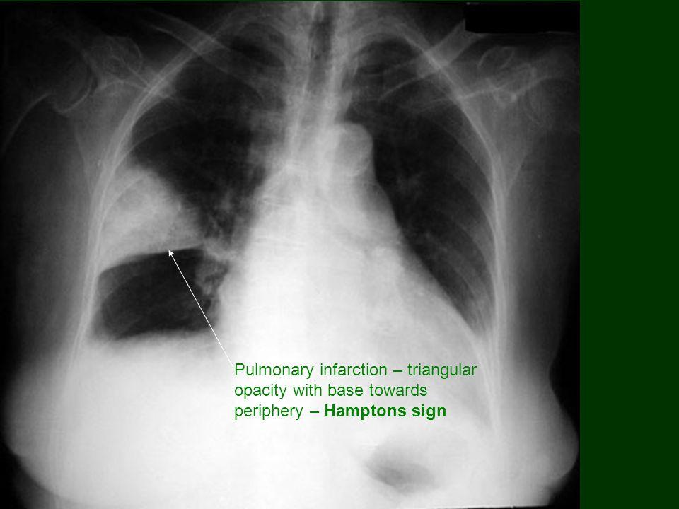 Pulmonary infarction – triangular opacity with base towards periphery – Hamptons sign