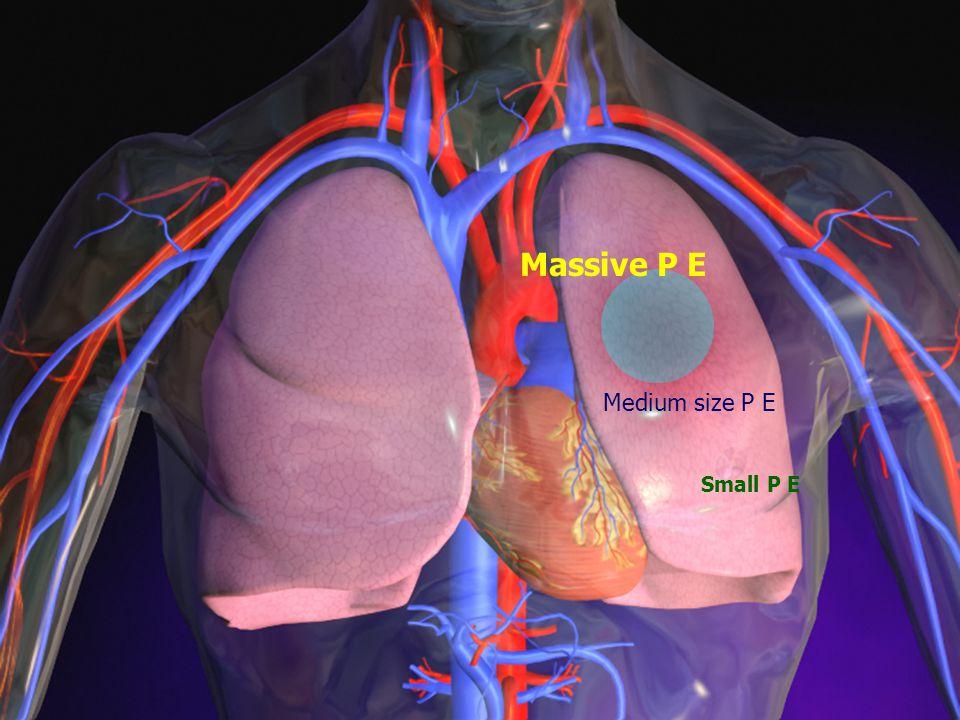 Massive P E Medium size P E Small P E