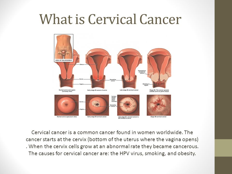 What is Cervical Cancer Cervical cancer is a common cancer found in women worldwide.