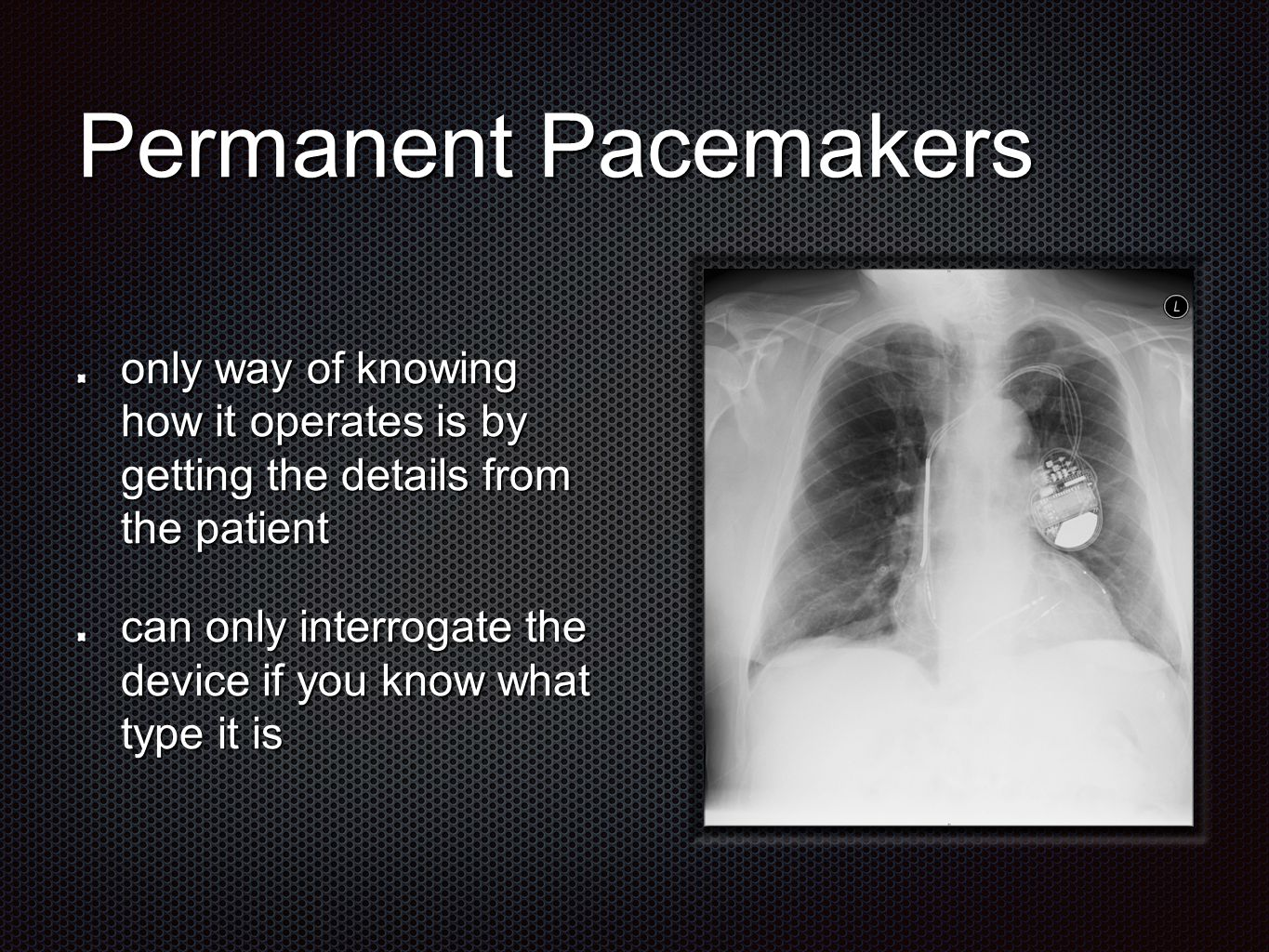 Pacing Modes Chamber paced O-none, A-atrial, V-ventricular, D-dual Chamber sensed O-none, A-atrial, V-ventricular, D-dual Response to sensing O-none, T-triggered, I-inhibited, D-dual