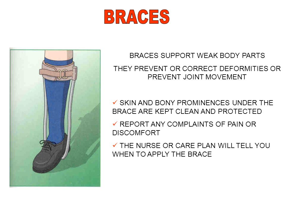 BRACES SUPPORT WEAK BODY PARTS THEY PREVENT OR CORRECT DEFORMITIES OR PREVENT JOINT MOVEMENT SKIN AND BONY PROMINENCES UNDER THE BRACE ARE KEPT CLEAN