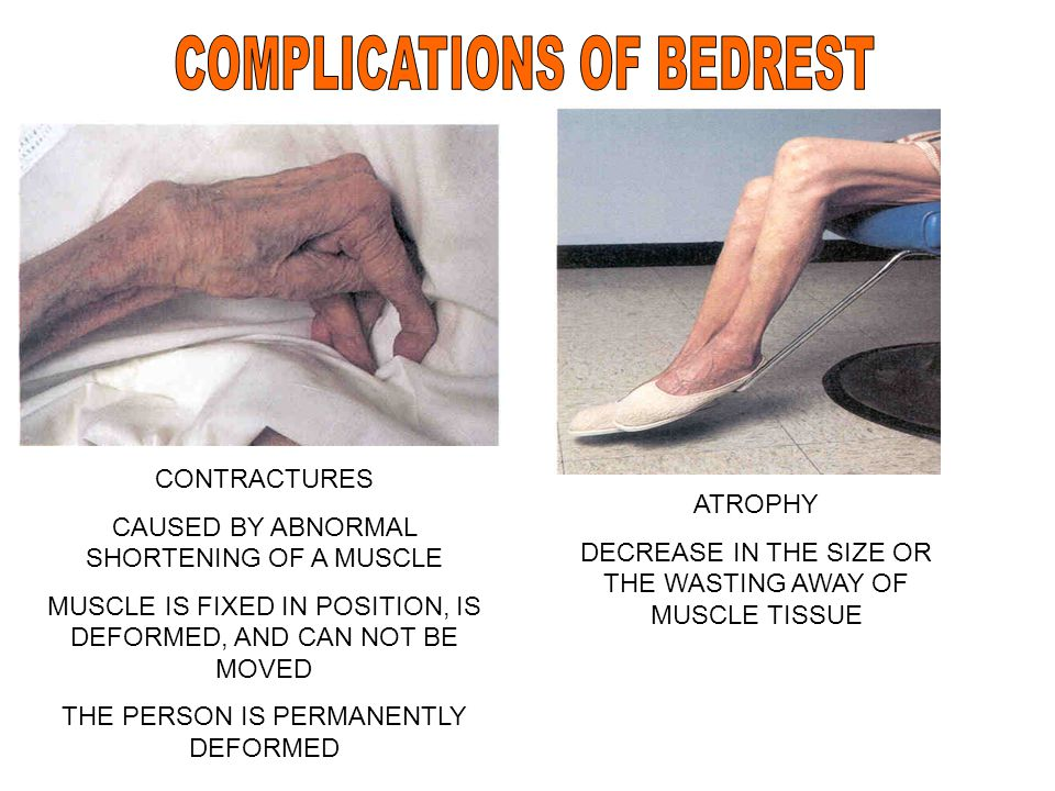 CONTRACTURES CAUSED BY ABNORMAL SHORTENING OF A MUSCLE MUSCLE IS FIXED IN POSITION, IS DEFORMED, AND CAN NOT BE MOVED THE PERSON IS PERMANENTLY DEFORM