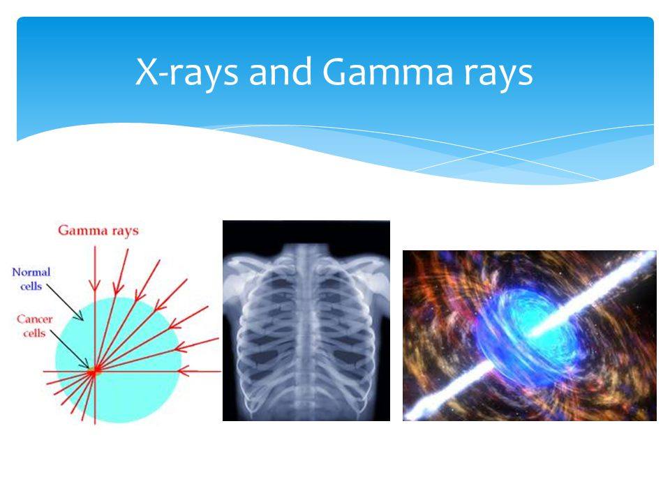 X-rays and Gamma rays