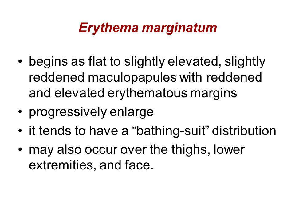 Erythema marginatum begins as flat to slightly elevated, slightly reddened maculopapules with reddened and elevated erythematous margins progressively
