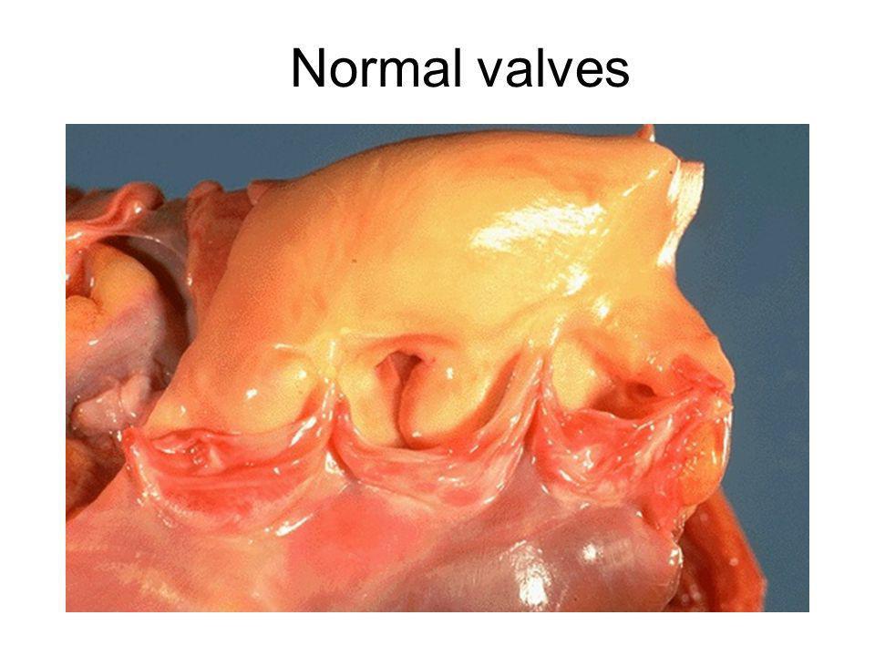 Normal valves