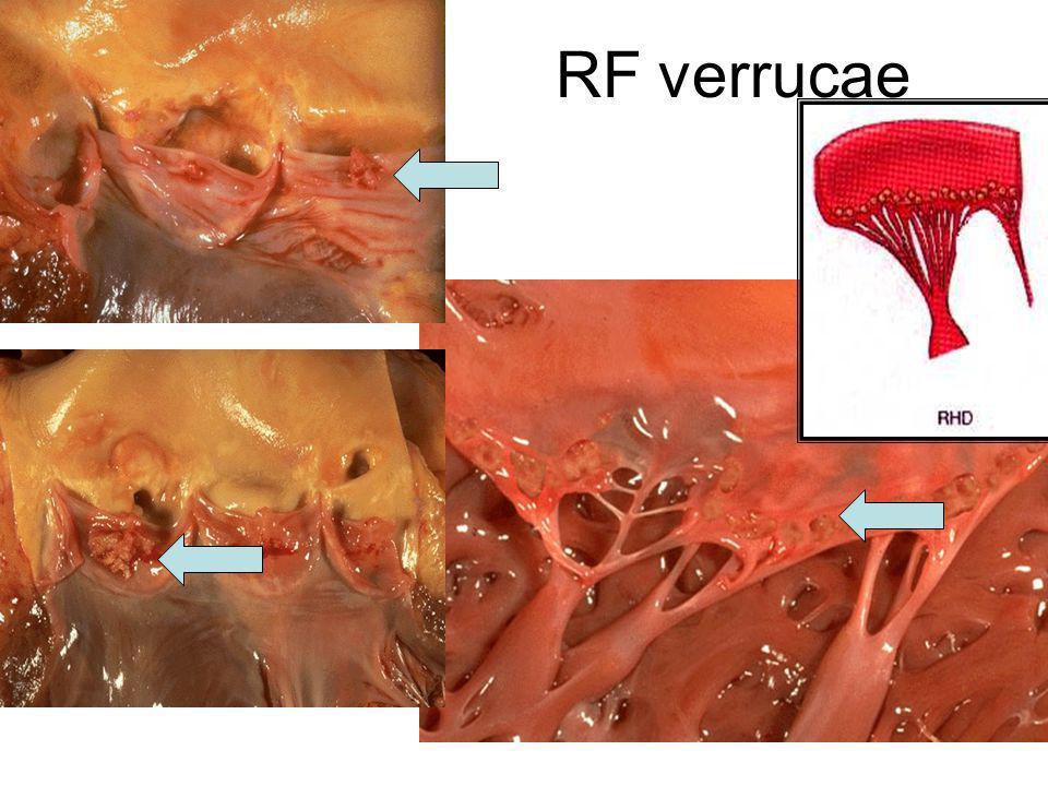 RF verrucae