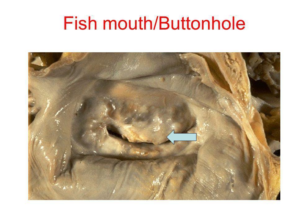 Fish mouth/Buttonhole