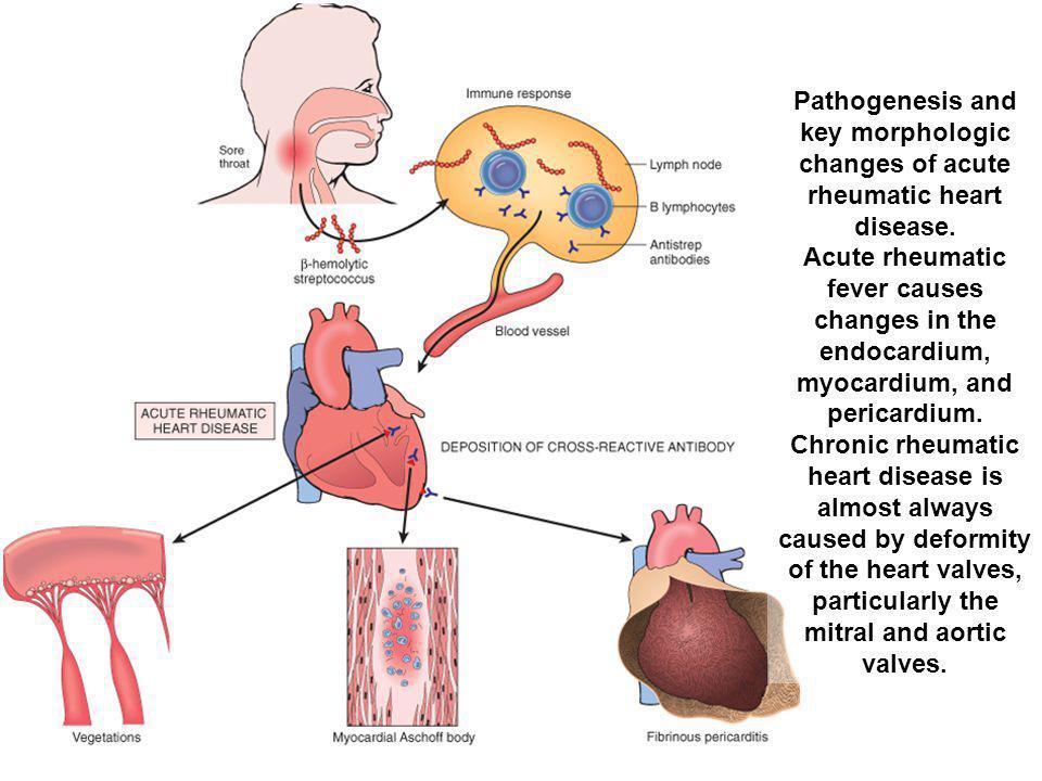Pathogenesis and key morphologic changes of acute rheumatic heart disease. Acute rheumatic fever causes changes in the endocardium, myocardium, and pe