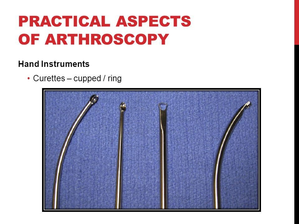 PRACTICAL ASPECTS OF ARTHROSCOPY Hand Instruments Curettes – cupped / ring