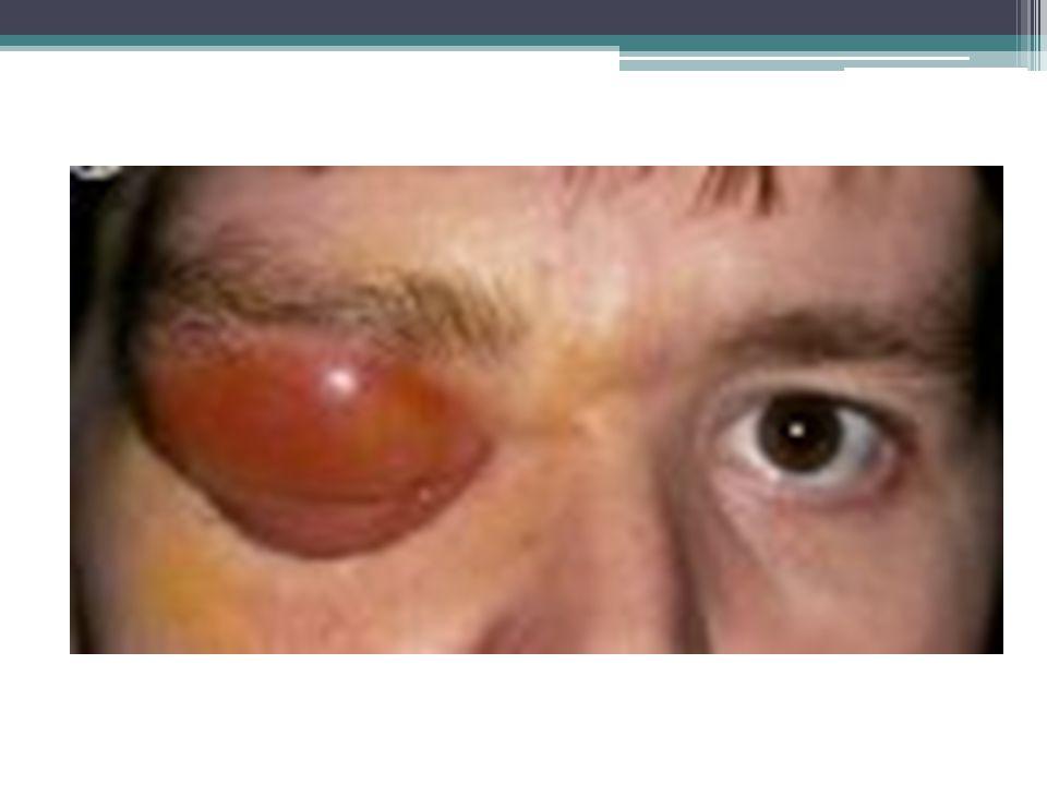Periorbital cellulitis Not an emergency, it's not in the orbit.