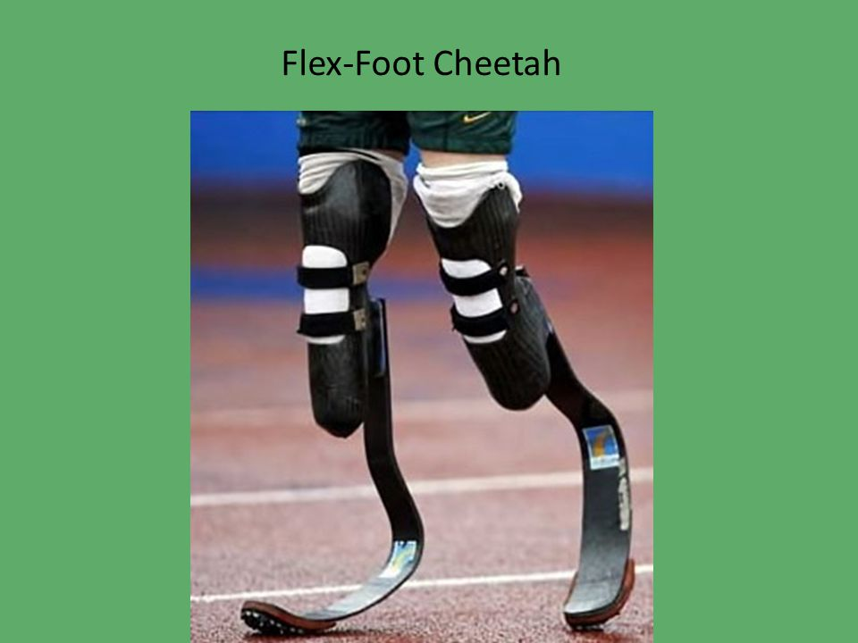 Ban competitors because: Flex-Foot Cheetah prosthesis Blades act as springs storing energy No calf muscles to tire out …the carbon fiber blades return around 80 to 90% of the energy they store under compression (Tucker and Dugas) In comparison, for human legs, …energy return ranges between 30% and 70% (Tucker and Dugas)