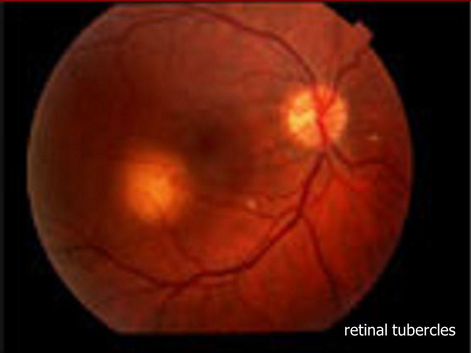 retinal tubercles
