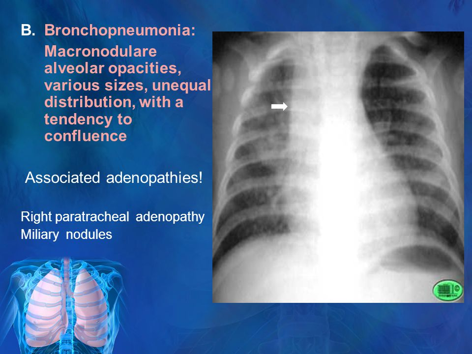 B.Bronchopneumonia: Macronodulare alveolar opacities, various sizes, unequal distribution, with a tendency to confluence Associated adenopathies.