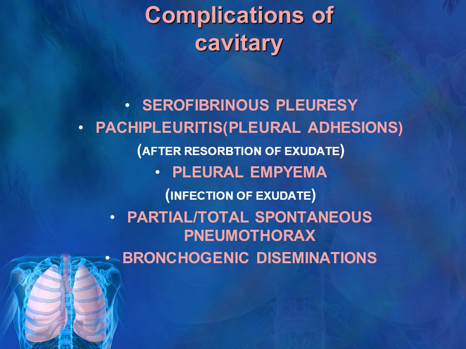 Complications of cavitary SEROFIBRINOUS PLEURESY PACHIPLEURITIS(PLEURAL ADHESIONS) ( AFTER RESORBTION OF EXUDATE ) PLEURAL EMPYEMA ( INFECTION OF EXUDATE ) PARTIAL/TOTAL SPONTANEOUS PNEUMOTHORAX BRONCHOGENIC DISEMINATIONS