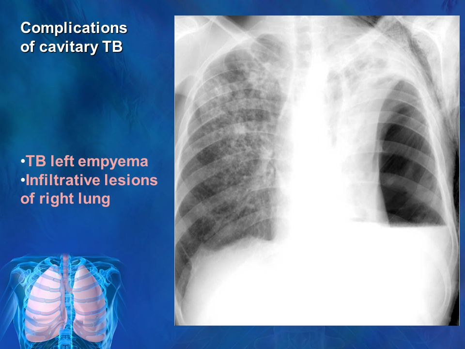 TB left empyema Infiltrative lesions of right lung Complications of cavitary TB