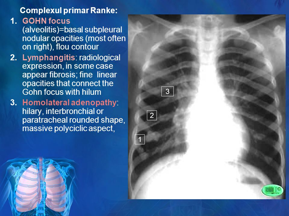 Complexul primar Ranke: 1.GOHN focus (alveolitis)=basal subpleural nodular opacities (most often on right), flou contour 2.Lymphangitis: radiological expression, in some case appear fibrosis; fine linear opacities that connect the Gohn focus with hilum 3.Homolateral adenopathy: hilary, interbronchial or paratracheal rounded shape, massive polyciclic aspect, 1 2 3