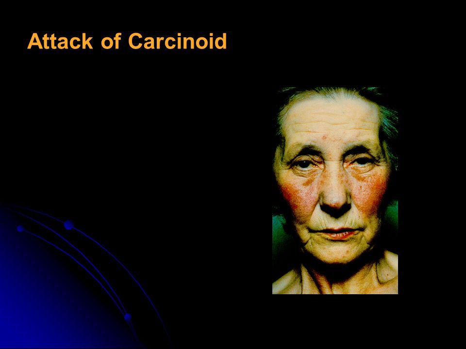 Carcinoid sendrom – symptoms Artriis (%7) Artriis (%7) Dermatitis (%5) Dermatitis (%5) Diarrhea (%68–84) Diarrhea (%68–84) cyanose (%18) cyanose (%18)