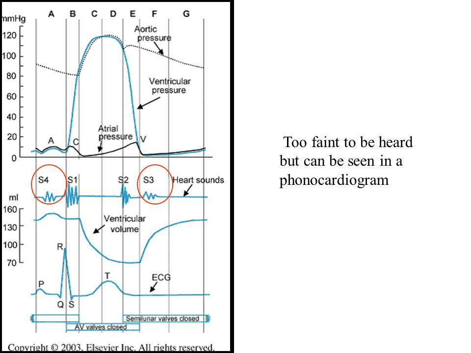 Too faint to be heard but can be seen in a phonocardiogram If S3 or S4 are audible it is called a gallop.