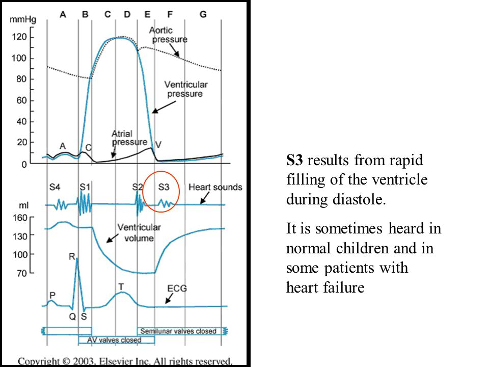 S3 results from rapid filling of the ventricle during diastole.