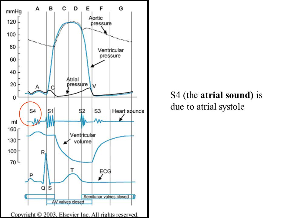 S4 (the atrial sound) is due to atrial systole