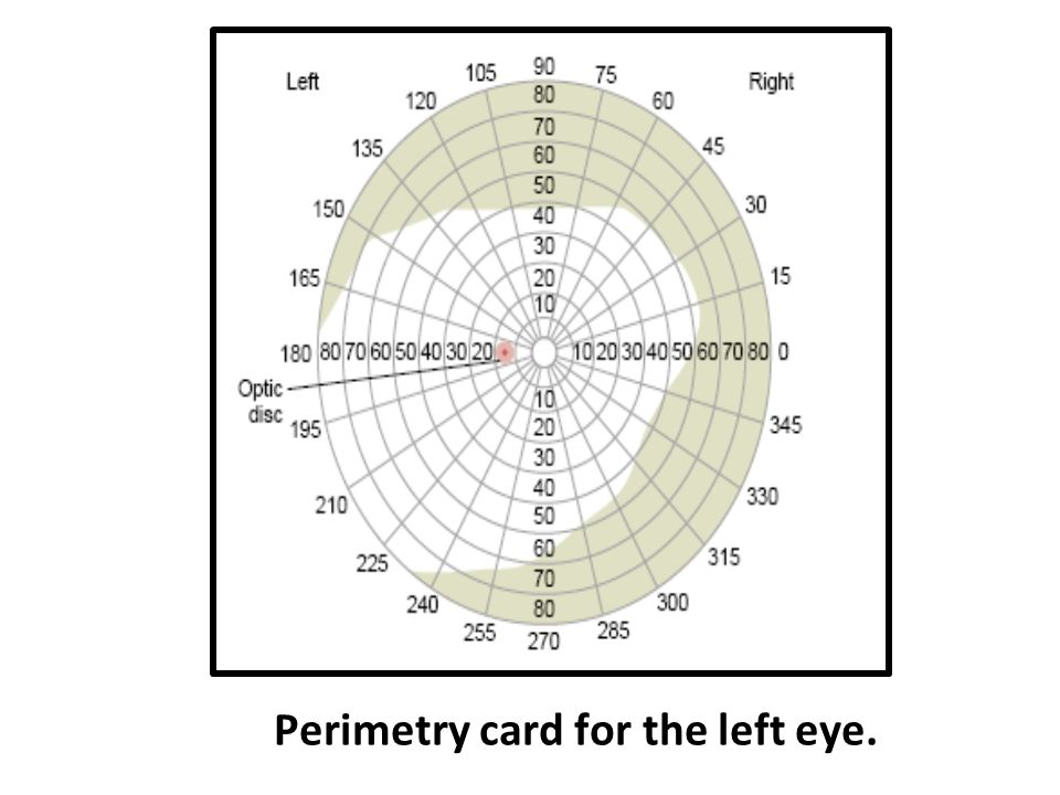 Perimetry card for the left eye.