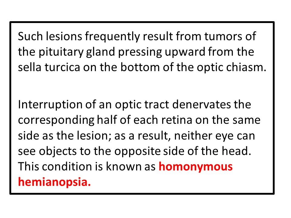 Such lesions frequently result from tumors of the pituitary gland pressing upward from the sella turcica on the bottom of the optic chiasm.