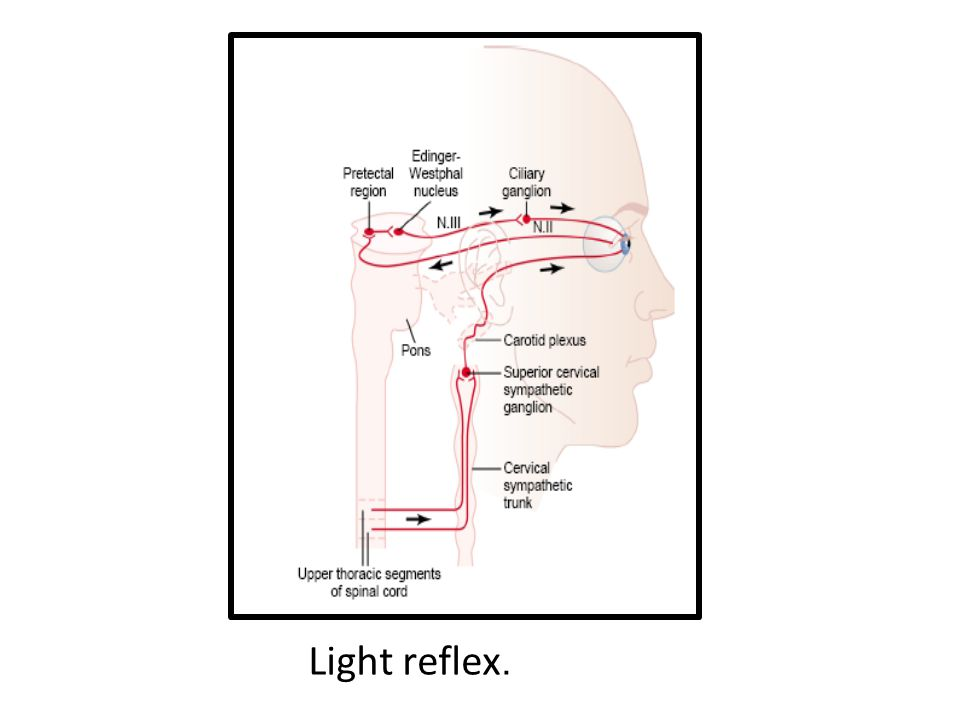 Light reflex.