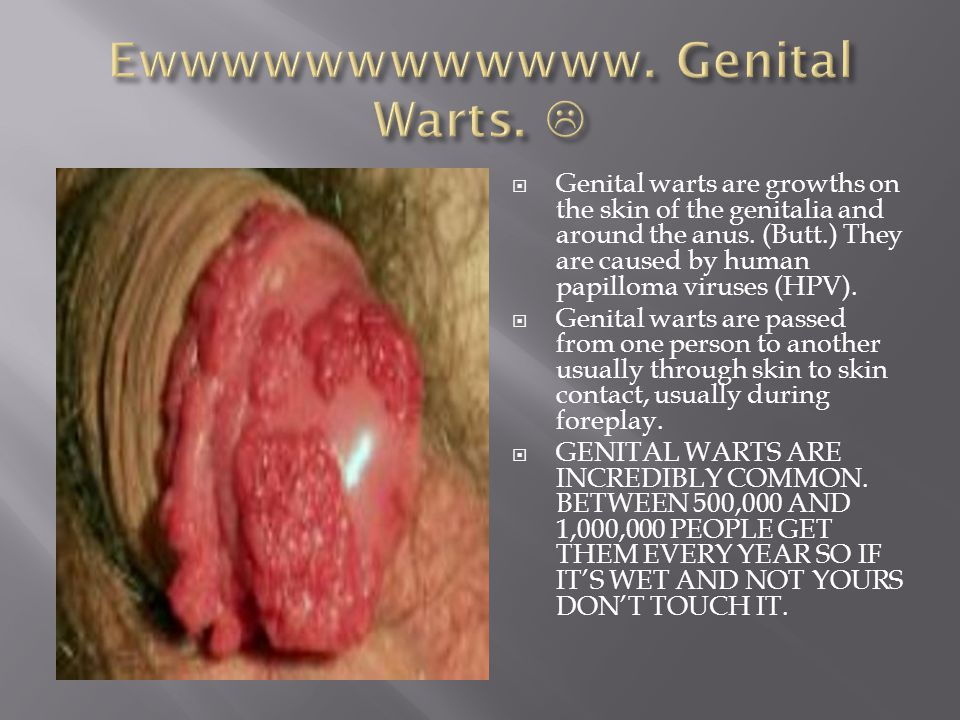  Genital warts are growths on the skin of the genitalia and around the anus.