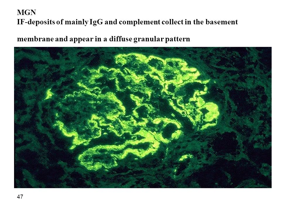 47 MGN IF-deposits of mainly IgG and complement collect in the basement membrane and appear in a diffuse granular pattern