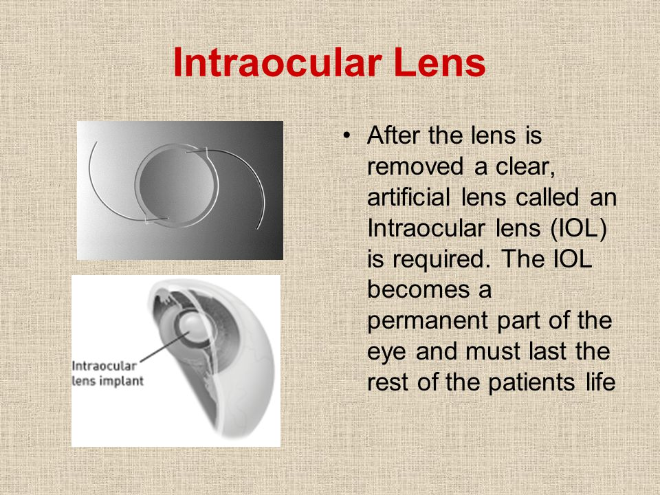 Intraocular Lens After the lens is removed a clear, artificial lens called an Intraocular lens (IOL) is required. The IOL becomes a permanent part of