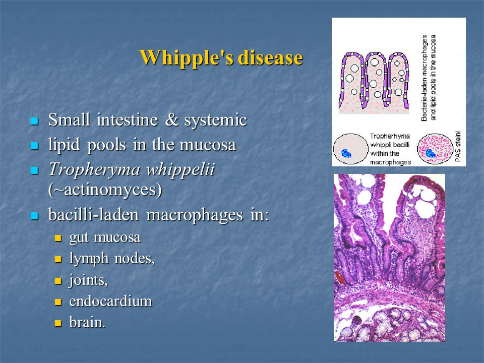 Whipple s disease Small intestine & systemic Small intestine & systemic lipid pools in the mucosa lipid pools in the mucosa Tropheryma whippelii (~actinomyces) Tropheryma whippelii (~actinomyces) bacilli-laden macrophages in: bacilli-laden macrophages in: gut mucosa gut mucosa lymph nodes, lymph nodes, joints, joints, endocardium endocardium brain.